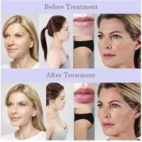 Neuramis Bellast Juvederm 1ml HA fillers Reshape HA Nose And Jawline enhancement Dermal Fillers