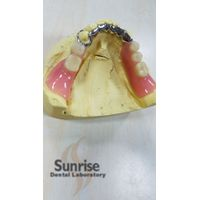 Dental Products--Partial Denture