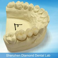 Quality dental making supplies PFM porcelain fused to metal crown or bridge
