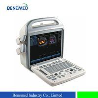 Color doppler ultrasound scanner BENE-3 thumbnail image