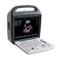 SS-1000 Color Doppler System(ultrasound,ultrasoni,color doppler,scanner