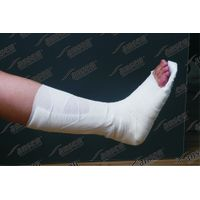 Thigh splint with fiberglass material