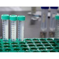 In-vitro Diagnostic materials-Monoclonal Anti-human immunoglobulin M thumbnail image
