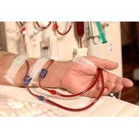 IGA Nephropathy thumbnail image