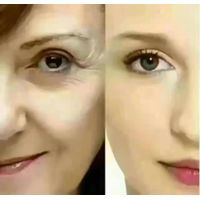 Botox Anti wrinkle InjectionAllergan Botulinum Skin Smoothing thumbnail image