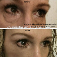 reducing eyebags and preventing puffiness dipeptide-2/Eyeliss