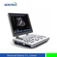 Portable Color Doppler Ultrasound Scanner Bene-3s thumbnail image