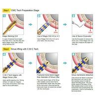 Sinus & Expansion kit