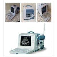 portable 3D ultrasound  SUN-800L/Pregnancy ultrasound thumbnail image