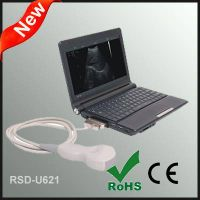 Laptop Full Digital Ultrasonic Diagnostic System