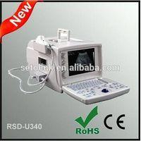 Portable Ultrasound Scanner RSD-U340