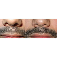 Hair treatment on mustaches in India