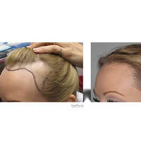 Hair treatment for Female pattern baldness in India