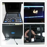 PC 3D Laptop ultrasound with two probe connectors and battery