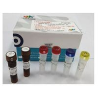 Coronavirus Diagnosis Kits_OPTOLANE thumbnail image