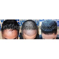 Hair treatment for male pattern baldness in India
