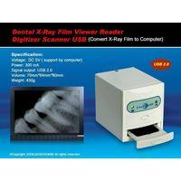 HK-300 USB X-Ray Film Viewer/Reader thumbnail image