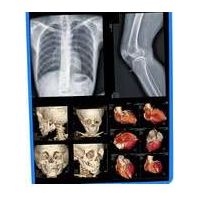 medical dry thermal film/ hot imaging x ray film/medical equipment with top quality