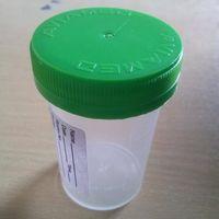 Urine Container 60 mL (2 oz) Nonsterile