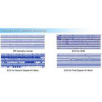 Borsam PC Based EKG Analyzer Holter ECG Software System