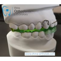 China dental lab outsourcing service