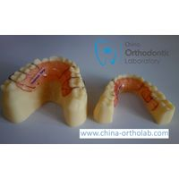dental orthodontic appliance from China dental lab