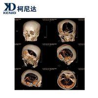 digital film scanner,film digitizer,dental digital x-ray film thumbnail image