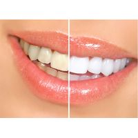Dental Laser Machine For Teeth Whitening Therapy , Dental Laser Treatment For Soft Tissue thumbnail image