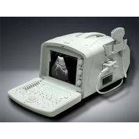 KZ-6000A ultrasound scanner