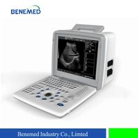 Black and withe digital Ultrasound scanner BW-5 thumbnail image