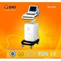 wrinkle remover RUV89 high intensive ultrasound hifu machine thumbnail image