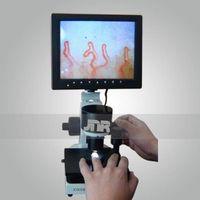 Professional Color Microcirculation Microscope