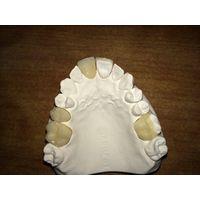 Dental full ceramic onlay and inlay supply