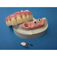 Fixed denture Porcelain Fused to Metal crown