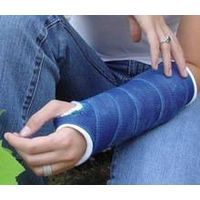 Long arm fiberglass tape cast for medical use fracture casting tape bandage