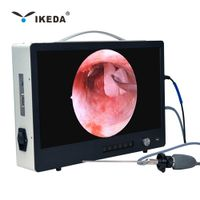 portable medical flexible ent endoscope camera for sale