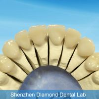 Dental Lab supply porcelain false teeth PFM artificial teeth