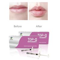 TOP-Q Super Derm Line 2ML hyaluronic acid lip enhancement gel injector