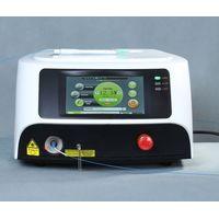 Diode ENT Laser For Turbinate Reduction In Case Of Allergic Rhinitis And Vasomotor Rhinitis thumbnail image