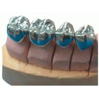 Full Metal Cast Crown Denture