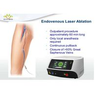 Small Size Endovenous Laser Therapy Treatment For Varicose Veins In Legs thumbnail image
