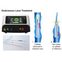 Varicose Veins Endovenous Laser Therapy / Treatment / Ablation 980nm Wavelength thumbnail image