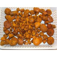 100% whole stones Gallstones