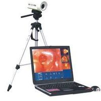 2000 Digital electronic Colposcope thumbnail image