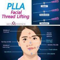 PLLA thread lifting thumbnail image