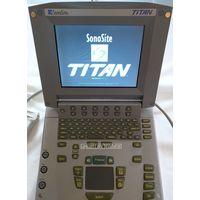 Sonosite Titan Portable Ultrasound