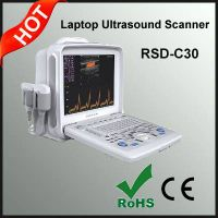 Portable Color Doppler Ultrasonic System