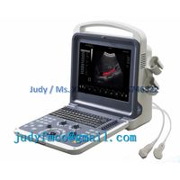 YJ-U60PLUS Labtop 4D Color Doppler Echo Cardiac Doppler Ultrasound