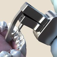 Lingual Debonding Orthodontic Plier 1 PCS thumbnail image