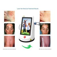Portable Small Berylas Laser Spider Vein Removal 15w 940w 532nm Lightweight thumbnail image